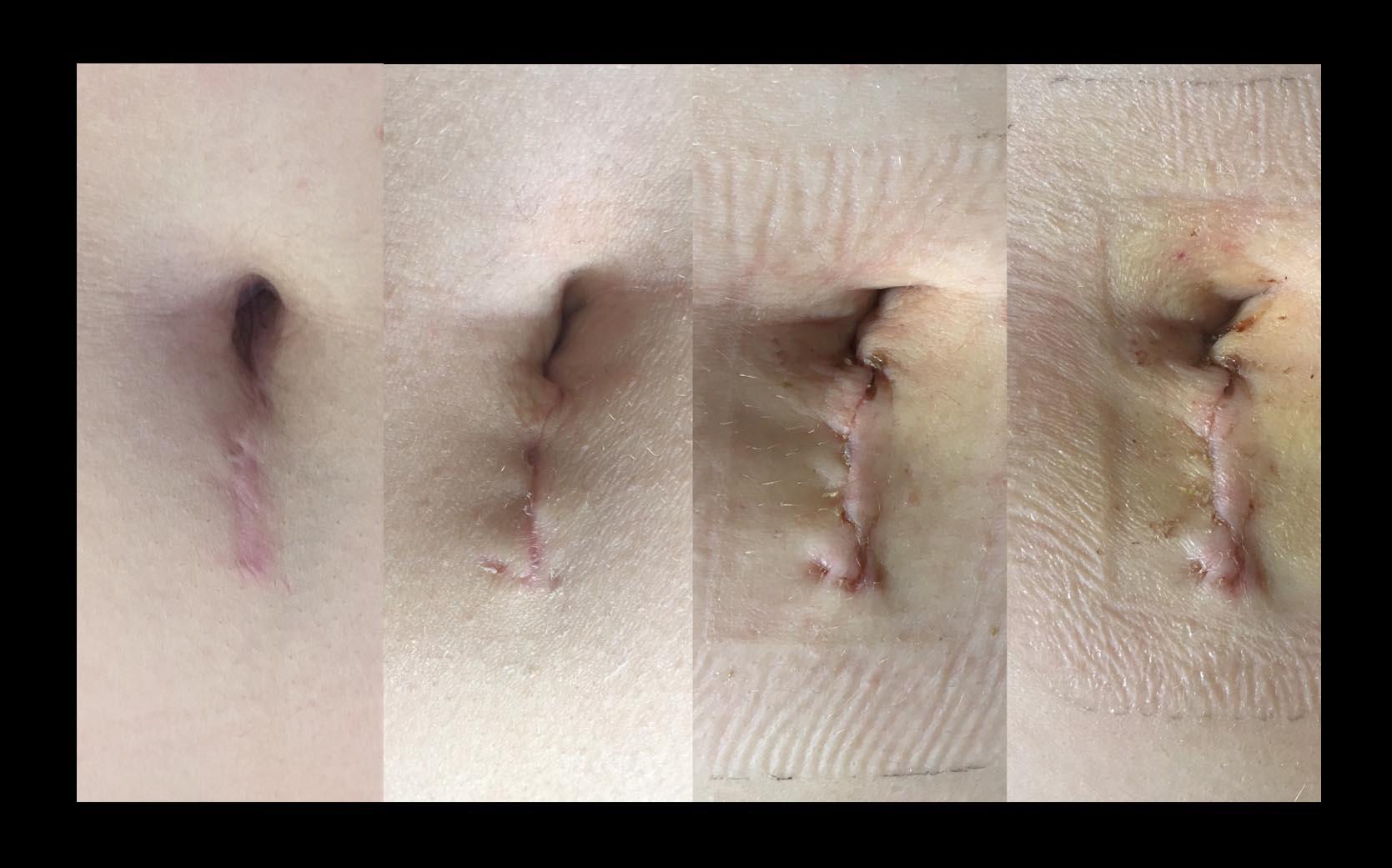 Liver resection scar laparoscopic keyhole liver resection FNH focal nodula hyperplasia